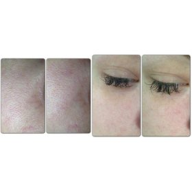 Supermud Clearing Treatment (34gr)