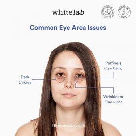 Eye Cream - Copper Tripeptide + Beta Glucan (10ml)
