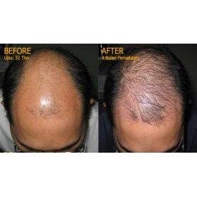Hair Growth Tonic (S)